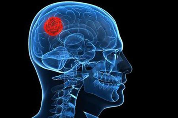 هجوم تومورهای سرطانی سایر نقاط بدن به مغز