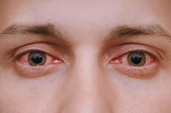 دلایل اصلی قرمزی چشم چیست؟